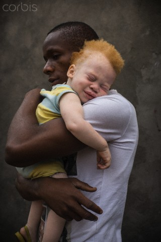 Democratic Republic of Congo (DRC), Kinshasa, black father holding his albino toddler